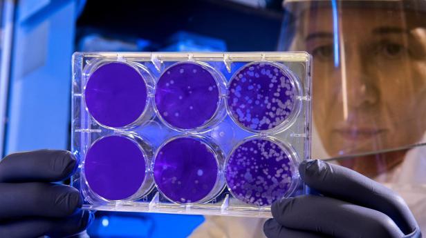 test_di_laboratorio_per_coronavirus_-_photo_by_cdc_on_unsplash